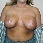 Breast Augment/Mastopexy