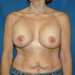 Breast Augment/Mastopexy
