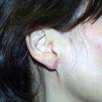 Cosmetic Ear Procedures