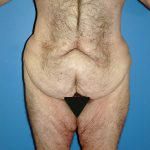 Abdominoplasty/Body Lift